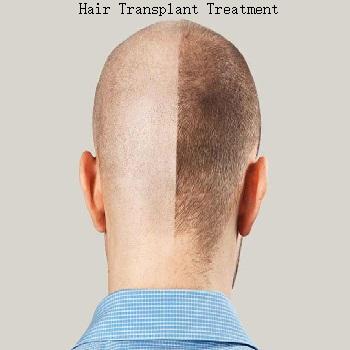 hair-transplant-treatment-the-skin-artistry