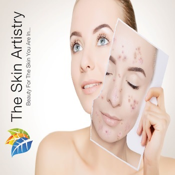 Acne-treatment-in-Ahmedabad