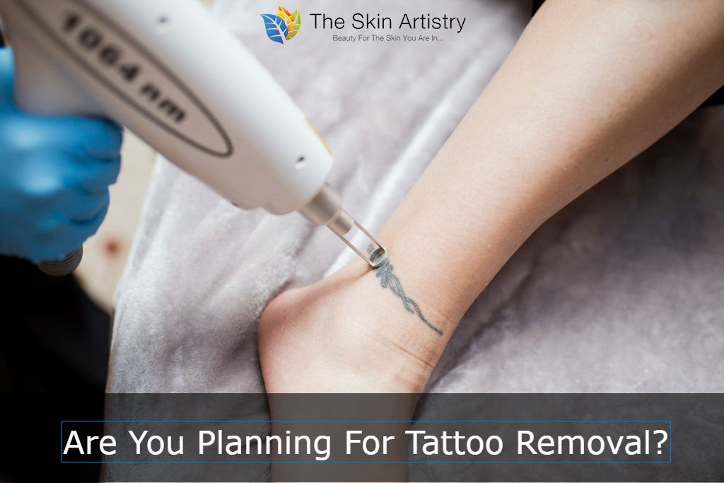 Tattoo-Removal-in-Ahmedabad