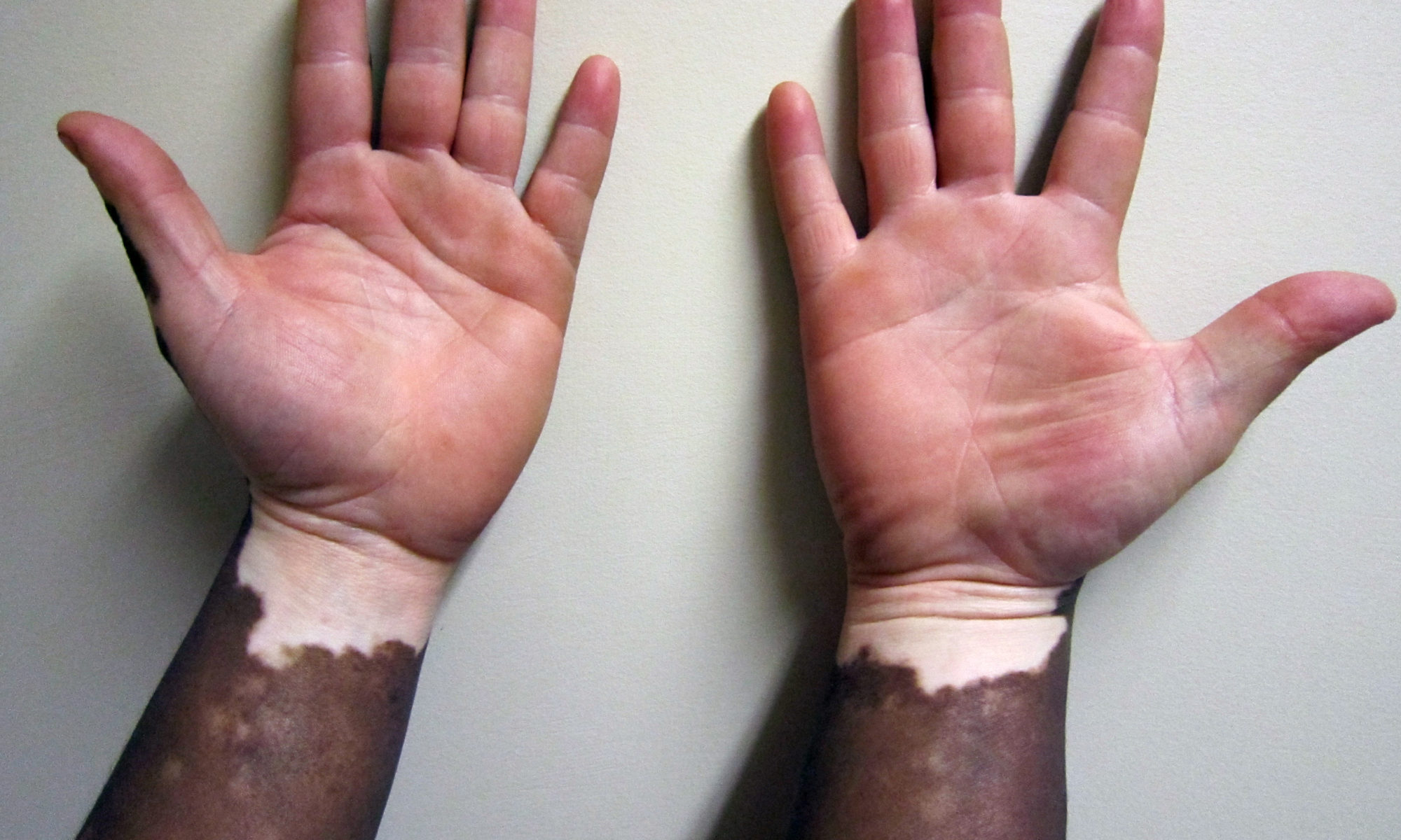 Vitiligo-Treatment-Image