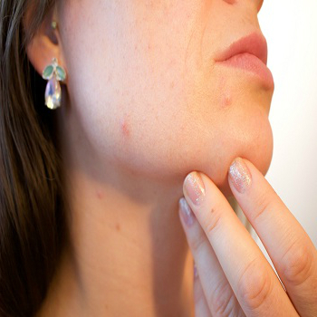 acne-effect-and-treatment