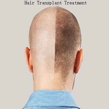 hair-transplant-treatment-the-skin-artistry